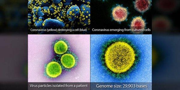 O κορονοϊός στο μικροσκόπιο: Οι πρώτες «φωτογραφίες» του SARS-CoV-2
