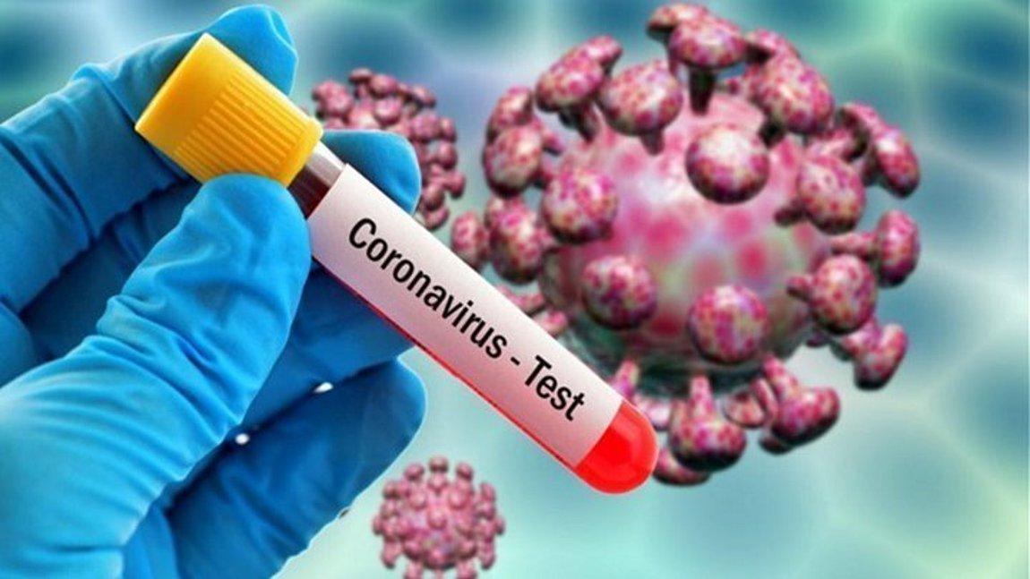 Κορωνοϊός: 284 κρούσματα το τελευταίο 24ωρο - 31 ασθενείς διασωληνωμένοι