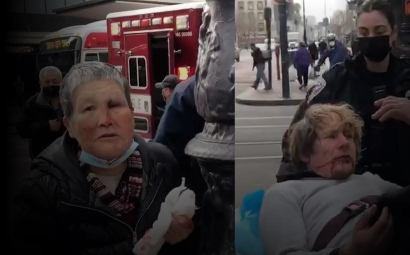 76χρονη Ασιάτισσα δέχτηκε επίθεση από 39χρονο ρατσιστή και τον έστειλε στο νοσοκομείο!